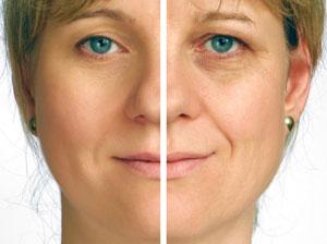 A Note on Facial Rejuvenation
