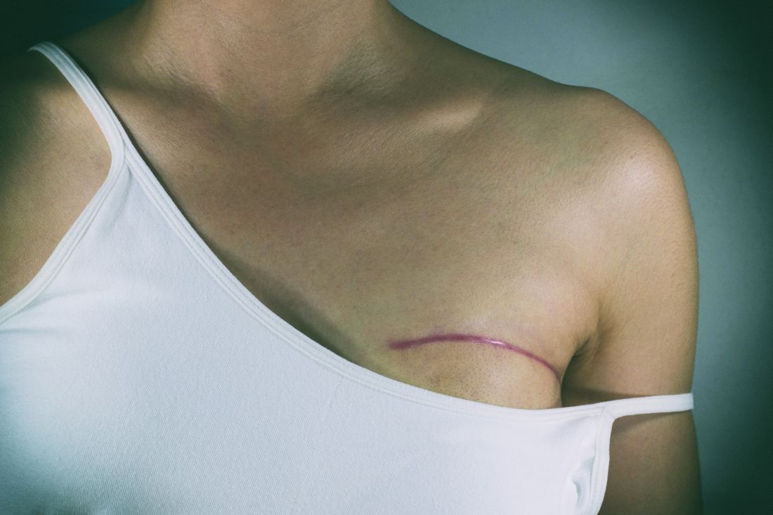 What is a Lumpectomy Procedure?